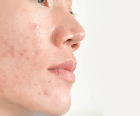 Peaux à tendance acnéique rétentionnelle : agir au plus tôt